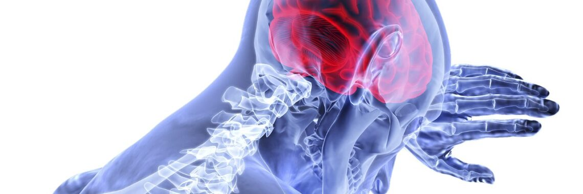 okrevanje po možganski kapi